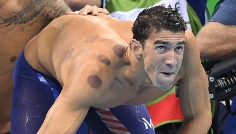 Cupping: have Olympians discovered the secret to success?